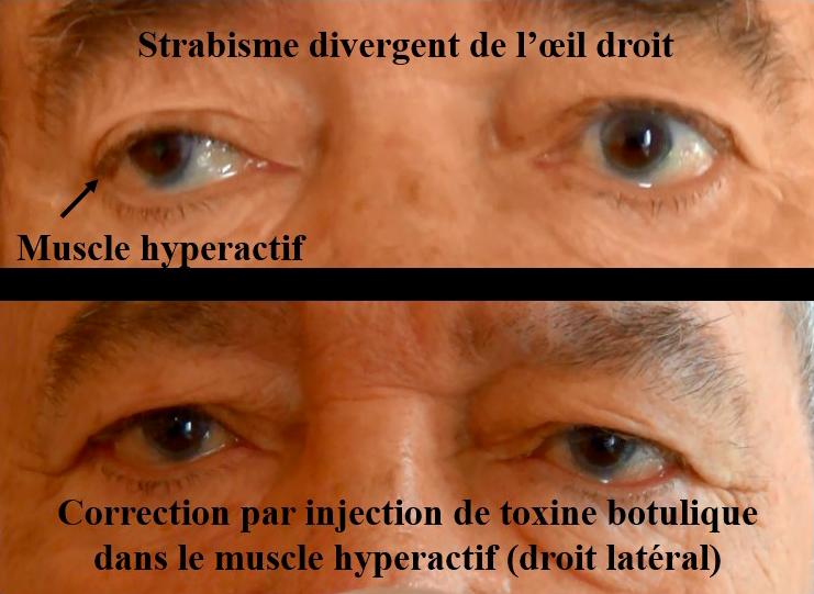 muscle hyperactif