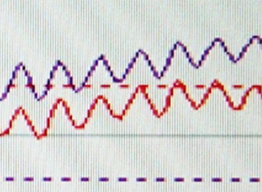 enregistrement d'un nystagmus pendulaire par vidéo-nystagmographie
