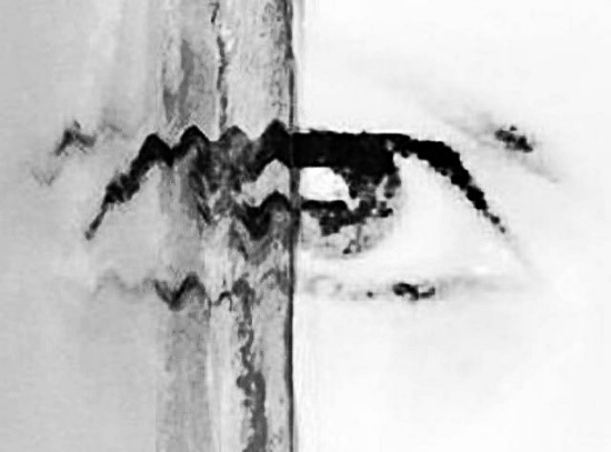De l'ombre à la lumière, après opéraion de cataracte. Oeuvre d'artiste symbolisant le résultat de l'opération
