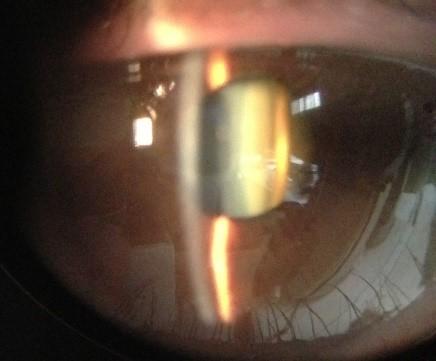 Opacité dense, de couleur jaune-orange, située derrière l'iris