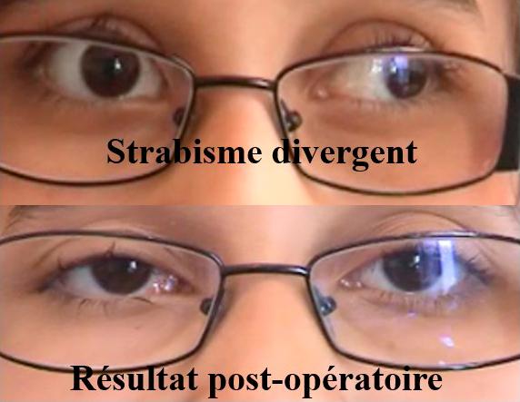 opération d'un strabisme divergent