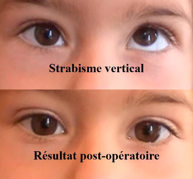 opération d'un strabisme vertical
