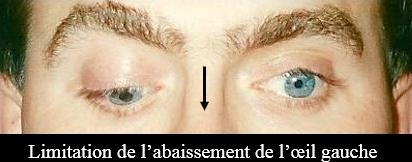 limitation de l'abaissement de l'oeil gauche