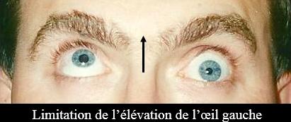limitation de l'élévation de l'oeil gauche