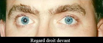 paralysie oculomotrice regard droit devant