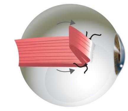 renforcement du muscle par plissement de son insertion