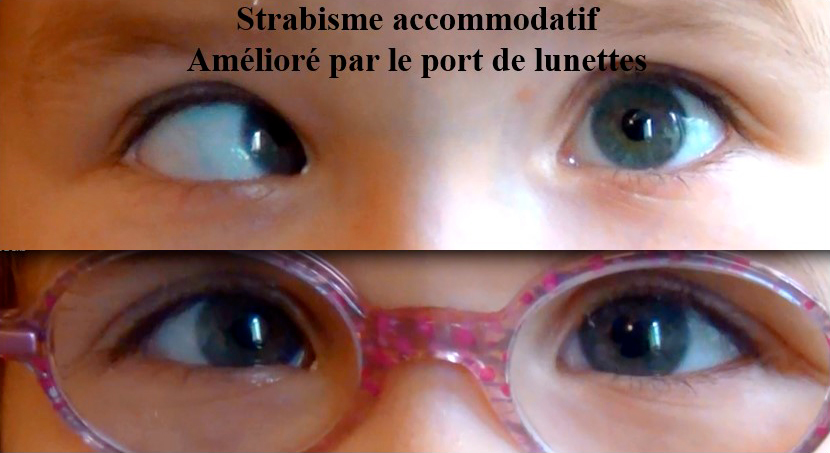 strabisme accommodatif