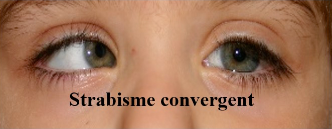 strabisme convergent