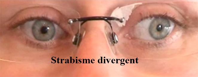 strabisme divergent